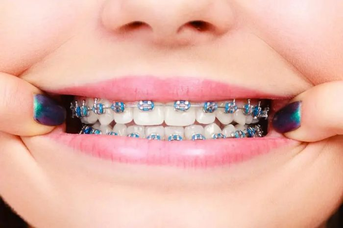 What are the different types of aligners?